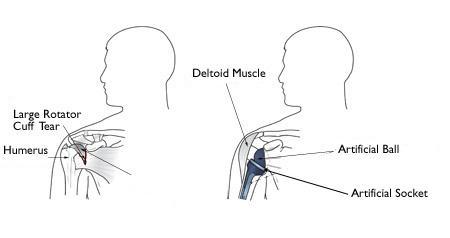 (Sinistra) Artropatia da cuffia dei rotatori. (Destra) La sostituzione totale di spalla inversa consente ad altri muscoli - come il deltoide - di fare il lavoro dei tendini della cuffia dei rotatori danneggiati.