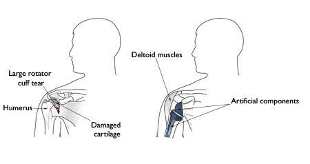 (Sinistra) Artropatia da cuffia. (Destra) La protesi totale inversa di spalla consente ad altri muscoli - come il deltoide - di fare il lavoro dei tendini della cuffia dei rotatori danneggiati.