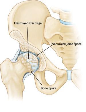 Un'anca artrosica.