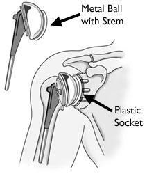 Una protesi totale di spalla