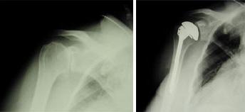 Queste radiografie sono state prese prima e dopo l'intervento chirurgico di sostituzione totale della spalla per osteoartrosi.