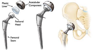 (Sinistra) I singoli componenti di una protesi totale d'anca. (Centro) I componenti uniti in un impianto. (Destra) L'impianto posizionato nelll'anca.