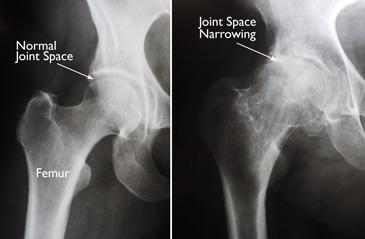 (Sinistra) In questa radiografia di un'anca normale, lo spazio tra la sfera e la cavità dimostra uno spessore di cartilagine sana. (Destra) Questa radiografia di un'anca artrosica mostra una grave perdita di spazio articolare.