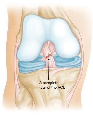 Le rotture parziali del legamento crociato anteriore sono rare; la maggior parte delle lesioni del legamento crociato anteriore sono complete o quasi complete