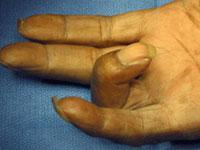 In questa foto, il dito del paziente rimane in posizione piegata mentre cerca diraddrizzarla.