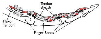 La puleggia tendinea si attacca alle ossa delle dita e mantiene insede il tendine flessore mentre si muove.