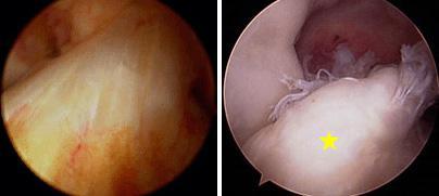 Immagine (sinistra) artroscopica del LCA normale. (Destra) immagine artroscopica di un LCA lesionato [stella gialla].