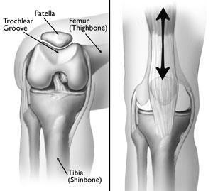 (Sinistra) La rotula normalmente si adagia in una piccola scanalatura all'estremità del femore chiamata solco trocleare. (Destra) Quando pieghi e raddrizzi il ginocchio, la rotula scivola su e giù nella