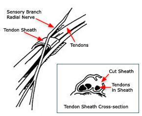 L'intervento consiste nell'aprire la guaina sopra i tendini infiammati.