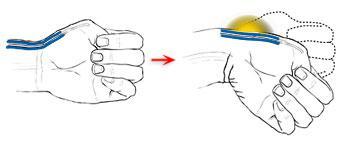 Test di Finkelstein. La freccia indica la localizzazione del dolore quando il test è positivo.