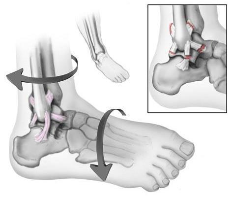 Una forza di torsione nella parte inferiore della gamba o del piede può provocare una distorsione. I legamenti laterali all'esterno della caviglia vengono più frequentemente lesionati.