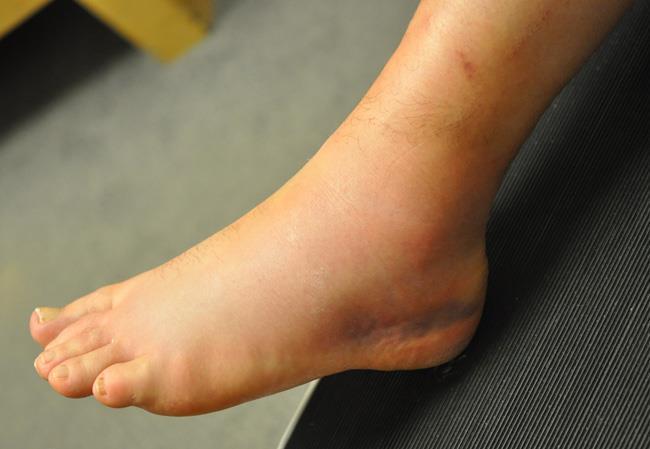Lividi e gonfiore sono segni comuni di distorsione della caviglia.