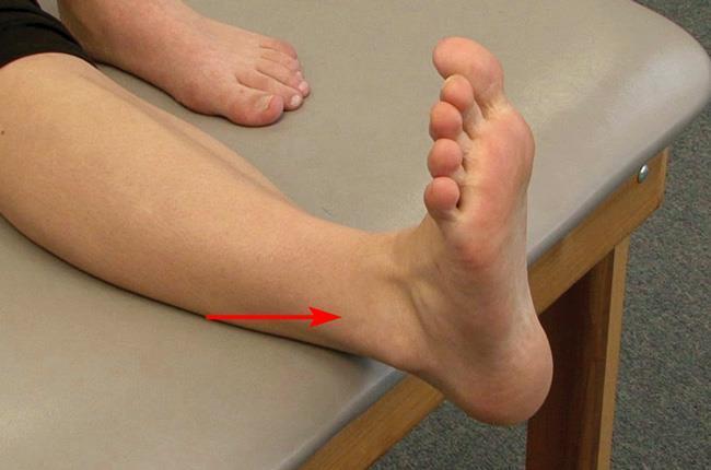 Per diagnosticare una distorsione, il medico palperà delicatamente la parte esterna della caviglia nell'area del dolore (freccia).
