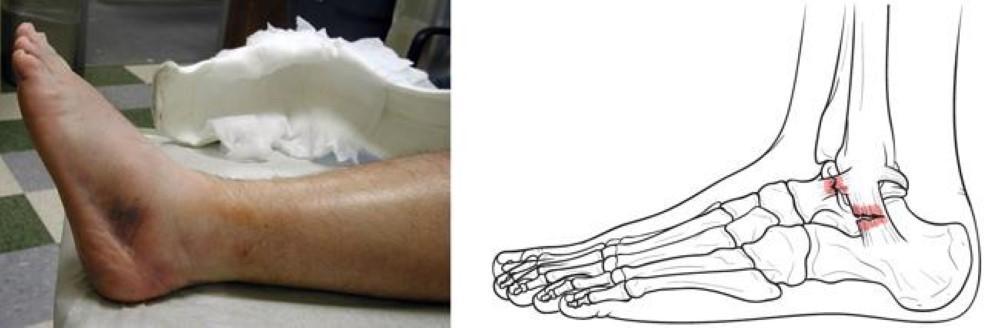 In una distorsione di grado 2, alcune ma non tutte le fibre del legamento vengono strappate. Sono comuni gonfiore e lividi moderati sopra e sotto l'articolazione della caviglia.