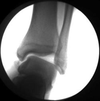 Questa radiografia mostra un'estrema instabilità della caviglia.
