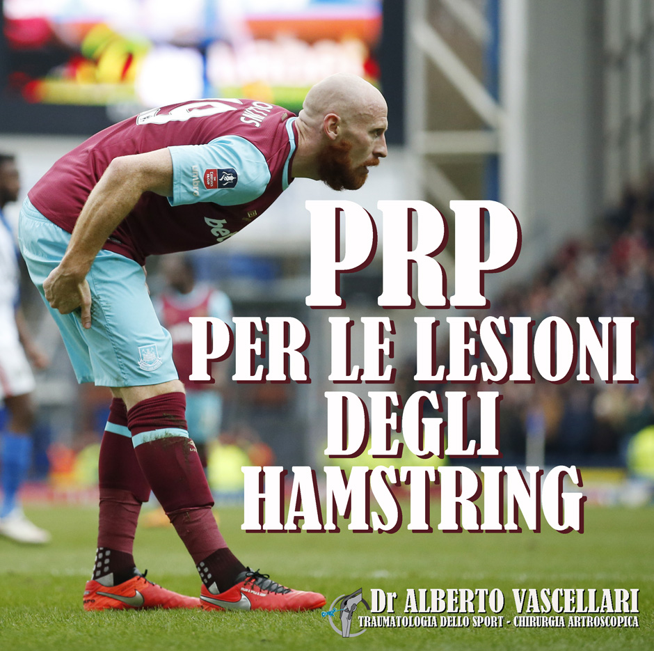 Le infiltrazioni di PRP fanno tornare prima al gioco dopo lesione degli hamstrings?