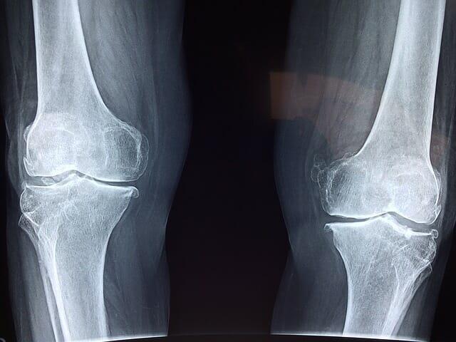 Medicina rigenerativa: come impiegarla in ortopedia